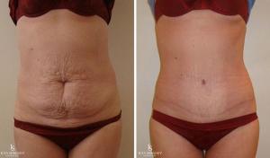 Люди после операции для похудения