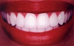 Способы отбеливания зубов в клинике