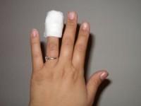 Порезал палец — что делать