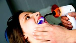 Боремся с потемнением зубов