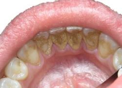 Почему темнеют зубы и как с этим бороться