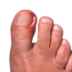 Что делать если гноится палец