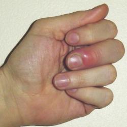 Гноится палец что делать