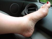 Почему отекают ноги - причины и лечение
