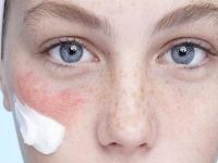 Красные пятна на лице — причины, лечение в домашних условиях