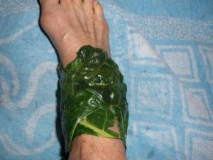 Капустные листья при ушибах