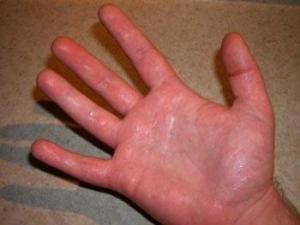 Что делать, если потеют руки