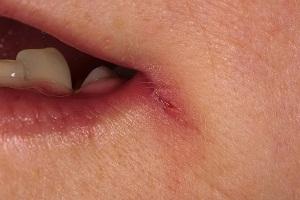 Причины заедов на губах
