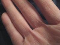 Трескается кожа на пальцах, что делать?