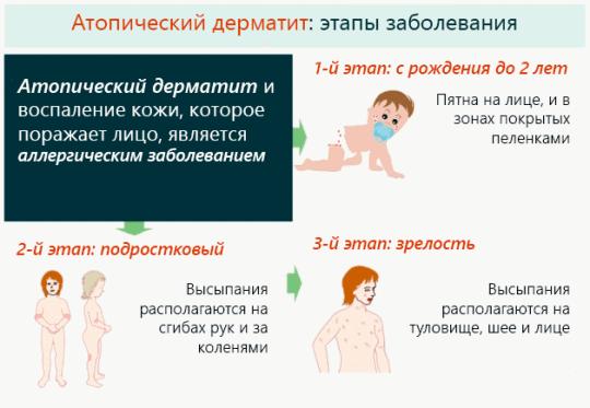 Атопический дерматит этапы заболевания