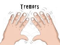 Тремор рук: причины, лечение