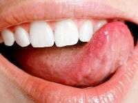 Болит кончик языка что делать