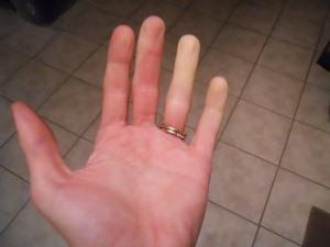 Немеют пальцы рук