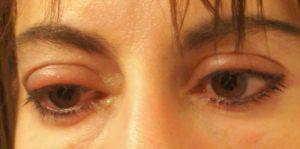 Что делать при отеках глаз