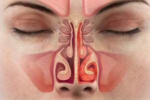 Воспаленная слизистая носа