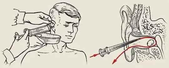 Промываем ухо