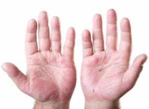 Трещины на пальцах рук: причины
